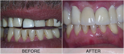 Denture With Crowns
