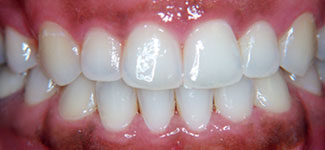 how to clean in gums